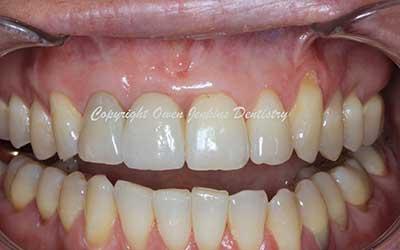 Anterior Implant Crown & Bone Graft