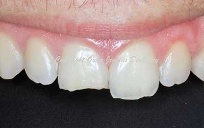 Tooth Coloured Filling After Trauma