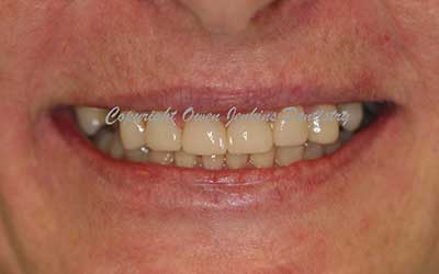 Composite Build-ups of Eroded Teeth