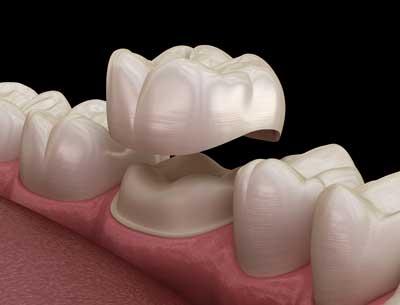 Dental Centre Maroochydore - Crowns