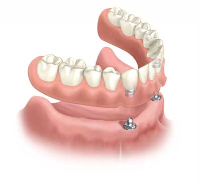 Dental Centre Maroochydore - Dentures