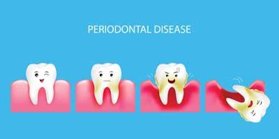 Dental Centre Maroochydore - Gum Disease