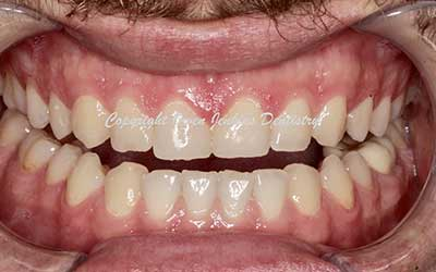 Gum Surgery for Crown Lengthening and Veneers