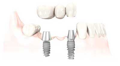 Dental Centre Maroochydore - Implants