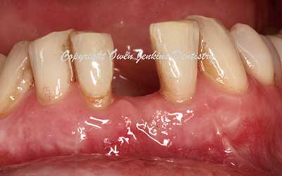 Lower Implant Crown