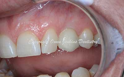 Replacement of retained baby teeth with implants