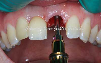 Same Day Provisional Implant Crown and Tooth Removal