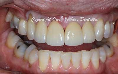 Smile Design - Crowns & Veneers