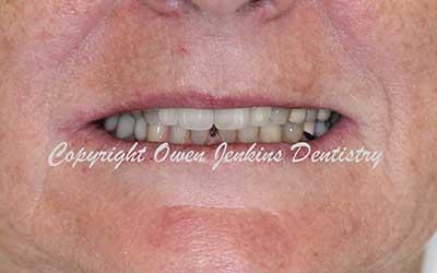 Smile Design - Crowns