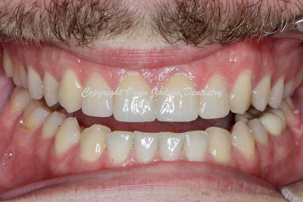 Dental Centre Maroochydore - Surgical Procedures
