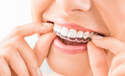 Dental Centre Maroochydore - Tooth Whitening