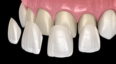 Dental Centre Maroochydore - Veneers