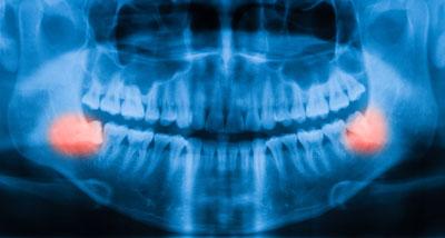 Dental Centre Maroochydore - Wisdom Teeth