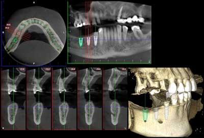Dental Centre Maroochydore - X-Rays
